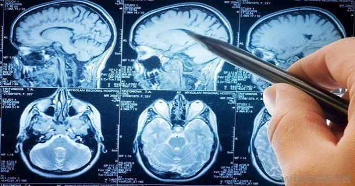 Овие секојдневни навики под итно мора да ги промените, не сте свесни колку му штетат на мозокот