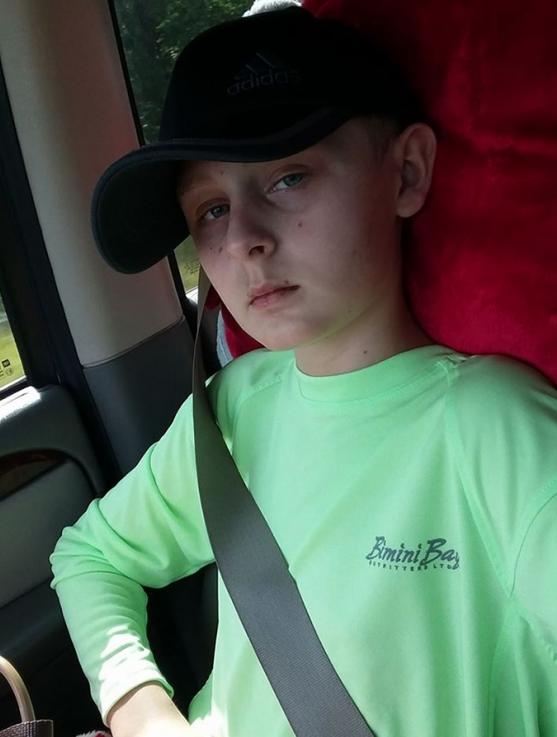 Се разбудил од кома ден откако родителите потпишале донирање на неговите органи!