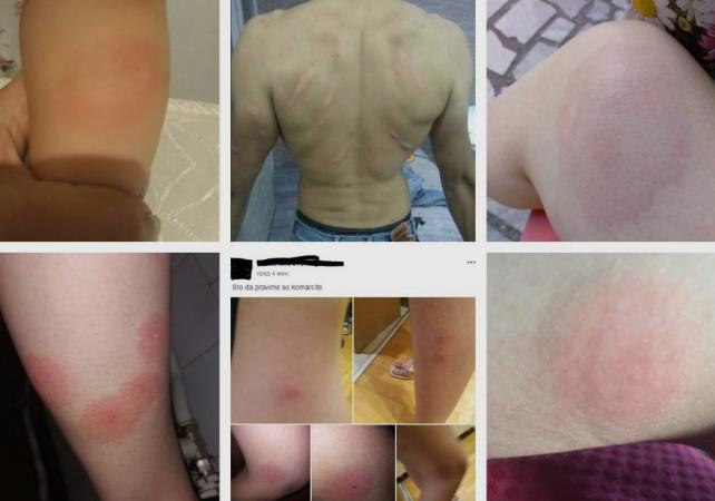 """Граѓаните револтирани и со големи отоци од комарци: ,,Ова е алармантно, не изедоа"""" (ФОТО)"""