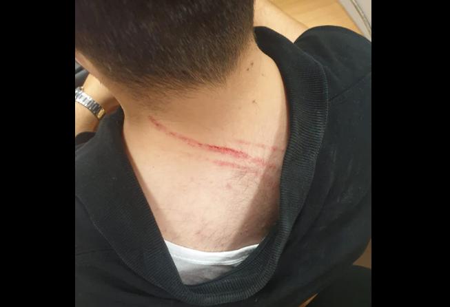 (ФОТО) Новинар нападнат на работно место во државната телевизија