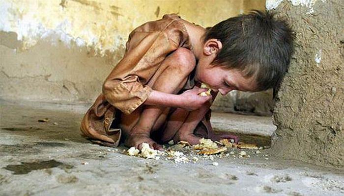Во светот повеќе деца умираат од глад отколку од болести