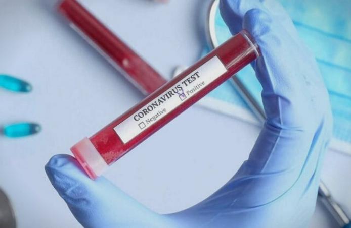 Заразена со коронавирус е медицинска сестра која придружувала болни?