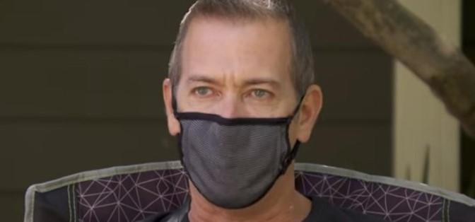 Пациент заразен со Ковид-19 за да го спасат му ги ампутирале прстите