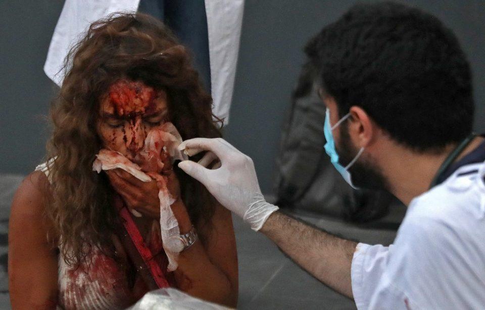 (ВИДЕО) Вознемирувачка снимка од болницата во Бејрут