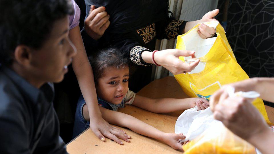 ОН: Во Јемен речиси половина од децата на возраст под пет години страдаат од неухранетост
